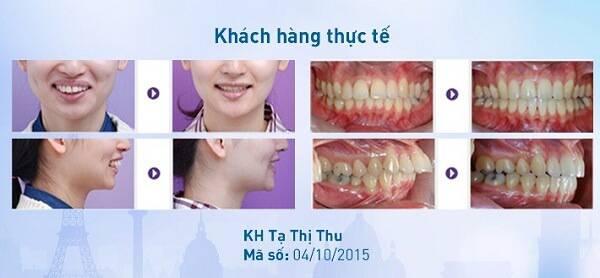 Niềng răng đau cỡ nào theo từng giai đoạn và cách khắc phục 5