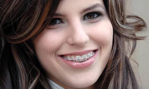 Niềng răng đau cỡ nào theo từng giai đoạn và cách khắc phục 1