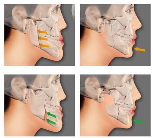 Cắt xương hàm chữa hô có nguy hiểm không & những điều cần biết! 1