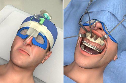 Cắt xương hàm chữa hô có nguy hiểm không & những điều cần biết! 2