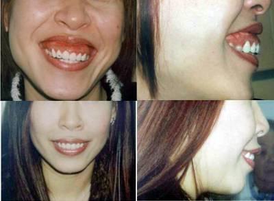 Cách chữa cười hở lợi ĐẢM BẢO thành công cho nụ cười thêm trọn vẹn 2