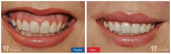 Cách chữa cười hở lợi ĐẢM BẢO thành công cho nụ cười thêm trọn vẹn 8