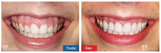 Cách chữa cười hở lợi ĐẢM BẢO thành công cho nụ cười thêm trọn vẹn 9