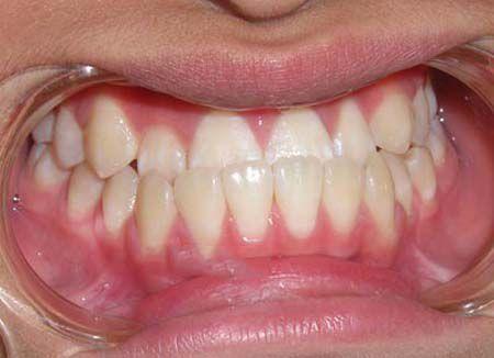 Phân biệt các dạng răng sai khớp cắn cơ bản thường gặp nhất 5