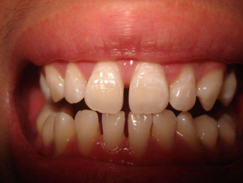 Phân biệt các dạng răng sai khớp cắn cơ bản thường gặp nhất 6