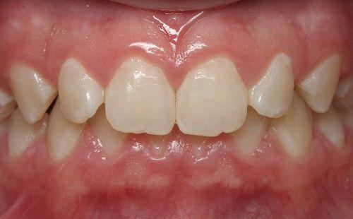 Phân biệt các dạng răng sai khớp cắn cơ bản thường gặp nhất 7