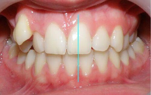 Phân biệt các dạng răng sai khớp cắn cơ bản thường gặp nhất 8