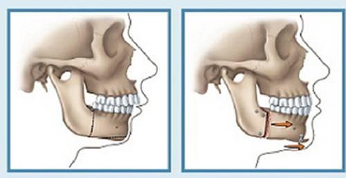 Phẫu thuật hàm hô có đau không với 3 trường hợp hô hàm【Giải Đáp】2