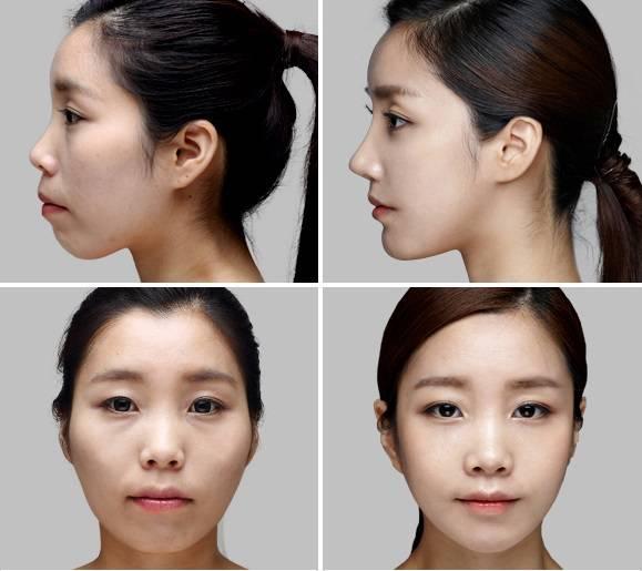 Phẫu thuật hàm hô có đau không với 3 trường hợp hô hàm【Giải Đáp】3