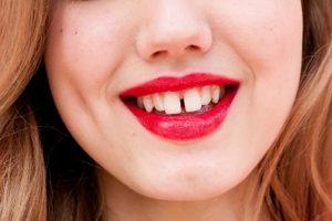 """Tại sao răng bị thưa & Cách khắc phục hiệu quả """"VĨNH VIỄN"""" 1"""