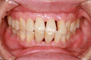 """Tại sao răng bị thưa & Cách khắc phục hiệu quả """"VĨNH VIỄN"""" 2"""