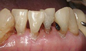 """Tại sao răng bị thưa & Cách khắc phục hiệu quả """"VĨNH VIỄN"""" 3"""
