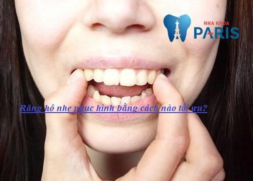 """Tham khảo phương pháp khắc phục răng hô nhẹ """"Dứt Điểm 100%"""" 5"""