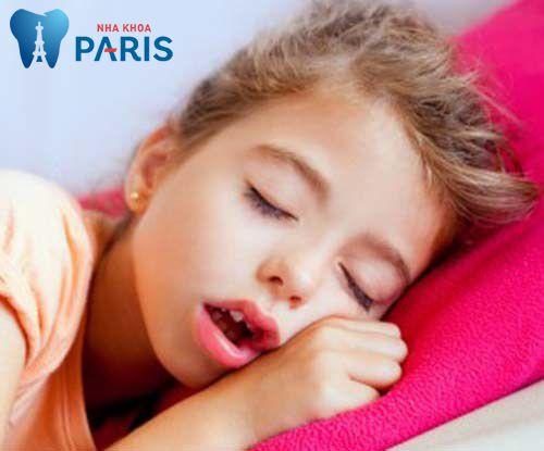 Nguyên nhân răng vẩu & cách điều trị răng hô (vẩu) an toàn hiệu quả 2