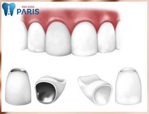 Nguyên nhân răng vẩu & cách điều trị răng hô (vẩu) an toàn hiệu quả 3