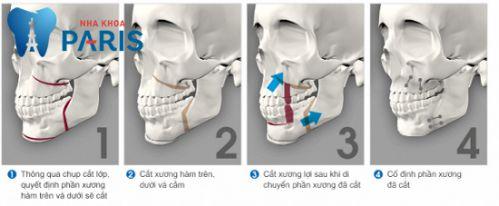 Nguyên nhân răng vẩu & cách điều trị răng hô (vẩu) an toàn hiệu quả 5