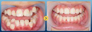 Chỉnh răng mọc lệch bao nhiêu tiền với từng phương pháp? NK Paris 2