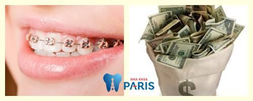 Niềng răng giá bao nhiêu tiền?