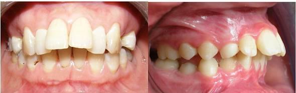 Niềng răng hô mất bao lâu để có hàm răng đẹp như Ý muốn? 2