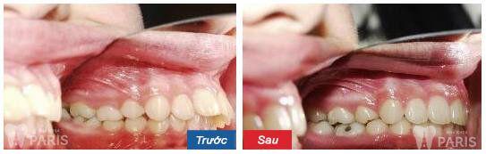 Kết quả trước và sau khi niềng răng có xinh đẹp hơn hay không? 3
