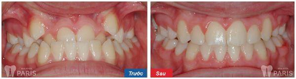 Kết quả trước và sau khi niềng răng có xinh đẹp hơn hay không? 4
