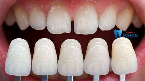 Top 3 cách chỉnh răng bị thưa đơn giản Hiệu Quả nhất 3