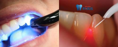 Top 3 cách chỉnh răng bị thưa đơn giản Hiệu Quả nhất 2