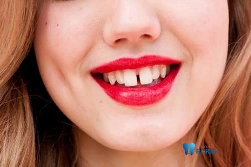 Top 3 cách chỉnh răng bị thưa đơn giản Hiệu Quả nhất 1
