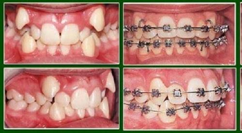 """2 cách làm răng thẳng đều """"chính thống"""" trong nha khoa 4"""