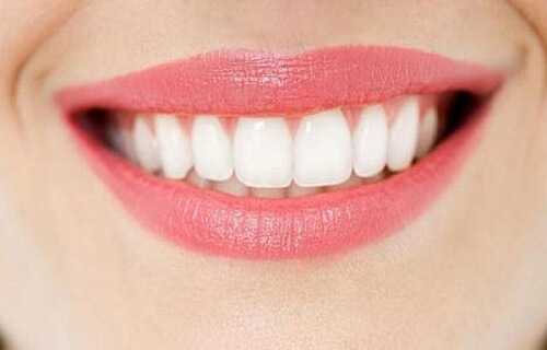 Hướng dẫn 2 phương pháp làm răng thẳng đều