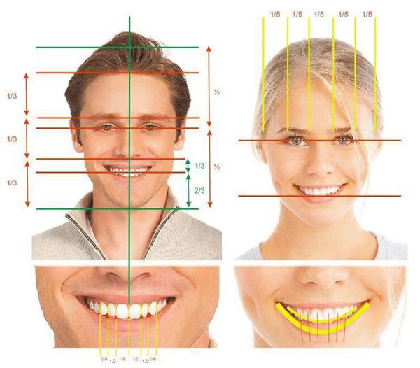 """2 cách làm răng thẳng đều """"chính thống"""" trong nha khoa 2"""