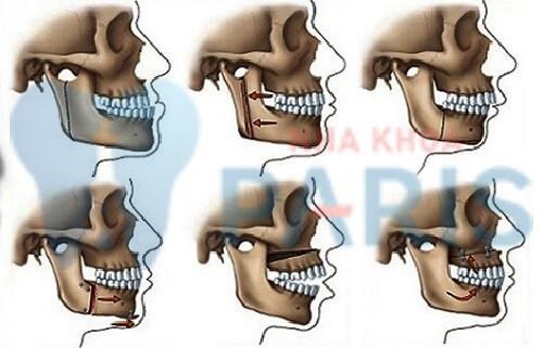 Phẫu thuật hàm hô không cần niềng áp dụng cho trường hợp nào? 3