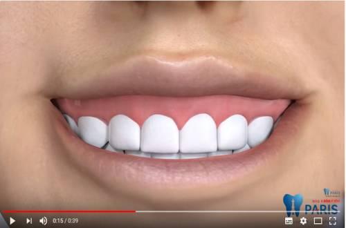 Cách chữa cười hở lợi ĐẢM BẢO thành công cho nụ cười thêm trọn vẹn 3