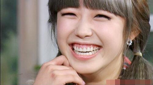 Bí quyết tập cười không hở lợi không phải ai cũng biết! 2