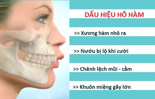 Hàm hô có niềng răng được không? Giải đáp từ chuyên gia nha khoa 1