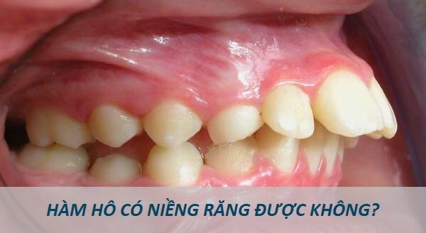 Hàm hô có niềng răng được không? Giải đáp từ chuyên gia nha khoa 2