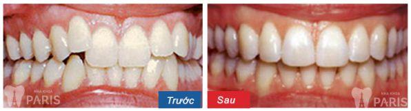 Dấu hiệu nhận biết khi nào cần niềng răng thì mới TỐT NHẤT 6