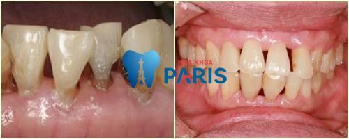 Tại sao răng bị thưa & những cách khắc phục hiệu quả tối ưu nhất 4