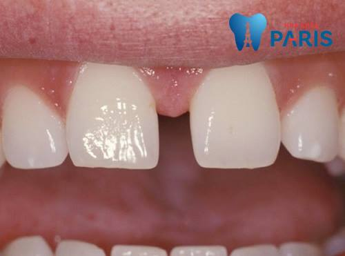 Tại sao răng bị thưa & những cách khắc phục hiệu quả tối ưu nhất 3