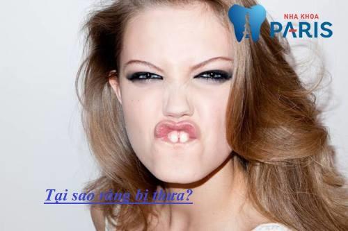 Tại sao răng bị thưa & những cách khắc phục hiệu quả tối ưu nhất 5