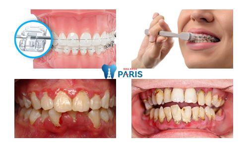 Niềng răng bị tụt lợi -Nguyên nhân và cách khắc phục TỨC THÌ 2