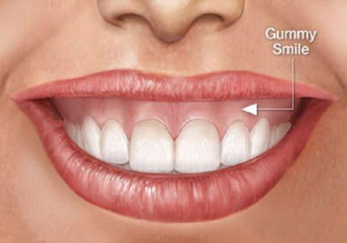 Bật Mí: Mẹo cười không hở lợi cực hay sẽ làm bạn bất ngờ! 1