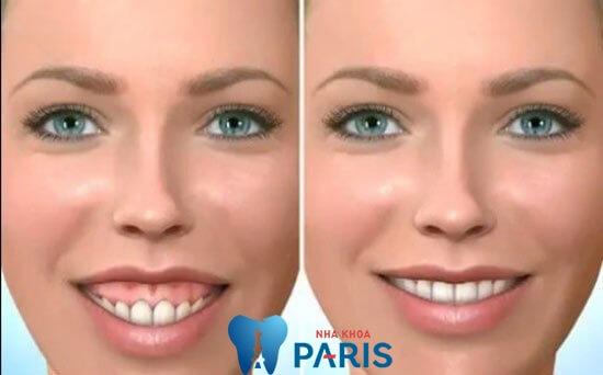 Cách chữa cười hở lợi KHÔNG ĐAU an toàn hiệu quả 100% 3