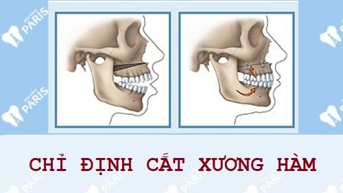 Cách chữa cười hở lợi KHÔNG ĐAU an toàn hiệu quả 100% 4