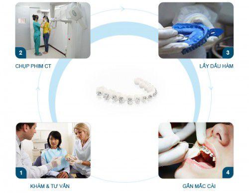 """Quy trình niềng răng cụ thể như thế nào? - """"Chia Sẻ Từ Chuyên Gia"""" 4"""