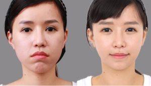 Phương pháp chỉnh răng hô hàm trên sau 2 giờ cho hiệu quả vĩnh viễn 1