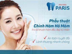 Phương pháp chỉnh răng hô hàm trên sau 2 giờ cho hiệu quả vĩnh viễn 2