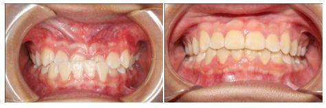 Răng móm là gì? Bị móm niềng răng có được không [BS Tư Vấn] 2