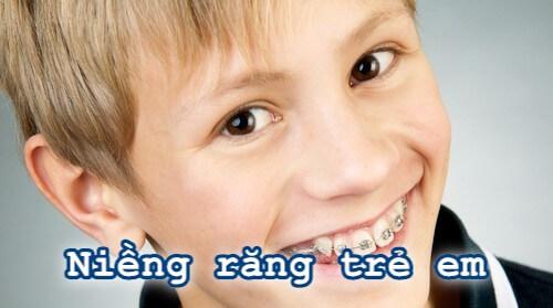 """Từ A-Z những thông tin quan trọng nhất về """"Niềng Răng Trẻ Em"""" 4"""