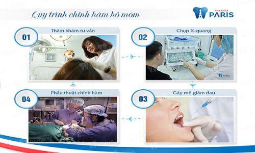 Phẫu thuật hàm móm BSSO - Hàm răng đều đẹp VĨNH VIỄN chỉ sau 2h 4